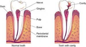 prevent tooth teeth decay cavities treatments march 2012